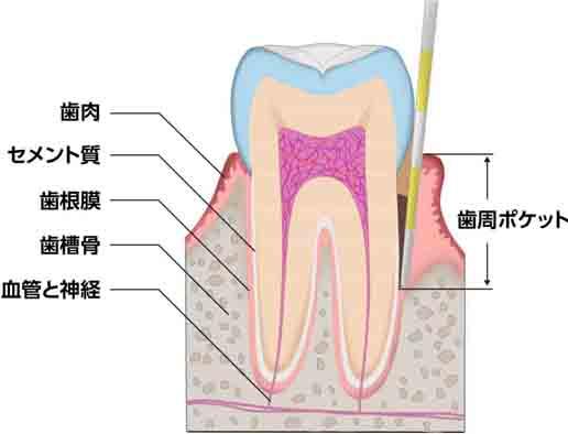 歯周病の溜まりやすい歯周病ポケット