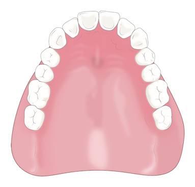 レジン総床義歯