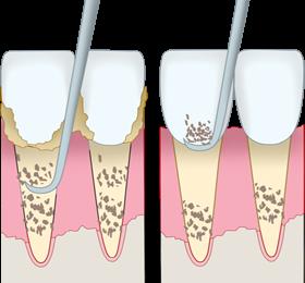 スケーラーによる歯石除去