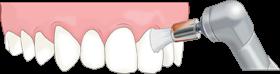 ブラシによる歯面研磨